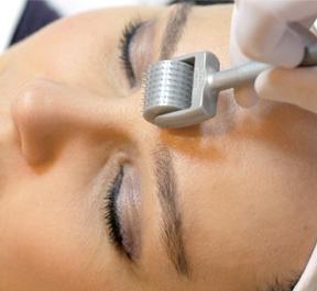Microagulhamento: o tratamento que restaura a pele