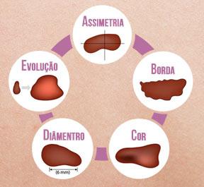 Câncer de pele: Tipo sintomas e tratamentos