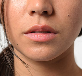 Solução para lábios ressecados