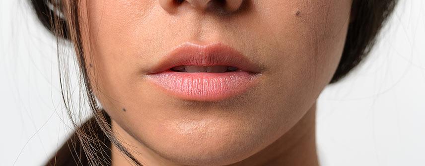 clinica-bolzan-blog-solucao-para-labios-ressecados