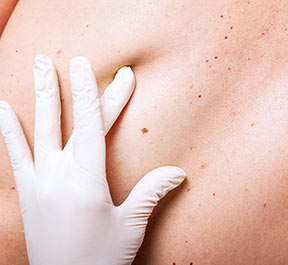 Manchas na pele entenda as possíveis causas