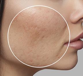 Quais os tratamentos para cicatrizes de acne?